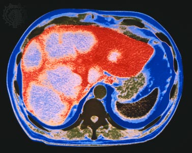 computed tomography (CT) scan of a cross section of the human abdomen, showing cancer of the liver