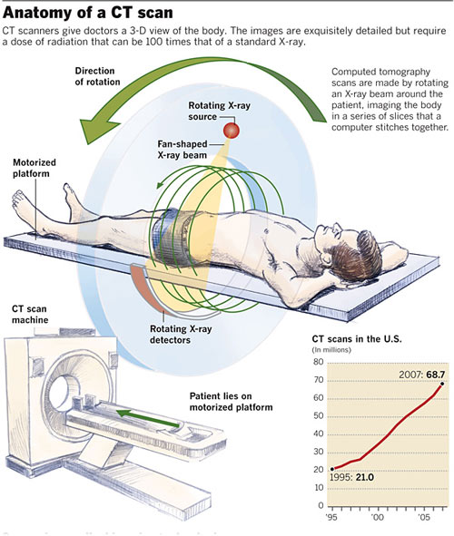 "Do I really want that CT scan?"" Study shows increased radiation ..."