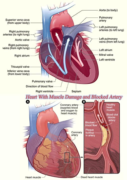 top: a healthy heart cross-section; bottom: heart with muscle damage and blocked artery